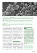 • Infekte und Biologika • Infections et médicaments biologiques ... - Page 7