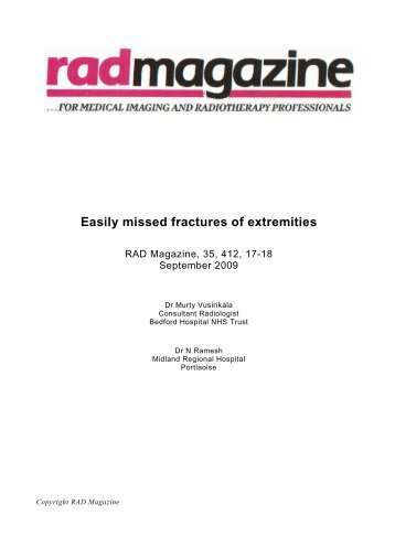 Easily missed fractures of extremities - RAD Magazine