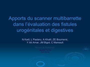 Apports du scanner multibarrette dans l'évaluation des fistules ...