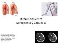 Diferencias entre Sarcopenia y Caquexia
