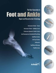 The Next Generation in Foot and Ankle Repair ... - Ortomedic
