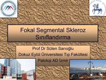Fokal Segmental Skleroz Sınıflandırma