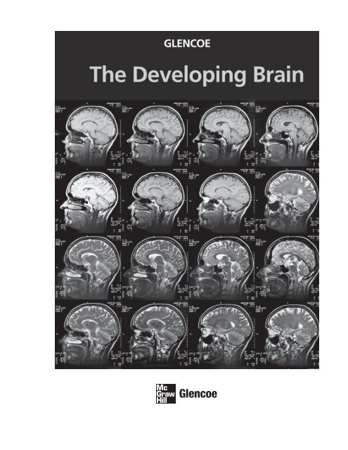 A Uconn Study Of How Human Brain Reads >> The Developing Brain 9124 0k Mcgraw Hill Higher Education