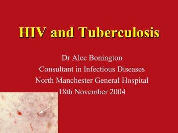HIV and Tuberculosis HIV and Tuberculosis - TB Alert