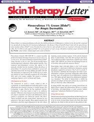 Pimecrolimus 1% Cream (Elidel ) For Atopic Dermatitis