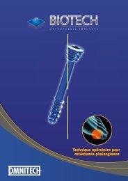 Technique opératoire pour ostéotomie phalangienne - Biotech ortho