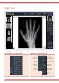 DIX-Ray® AQS - EXAMION - Page 6