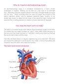 Electrophysiology Studies (EPS) - Arrhythmia Alliance - Page 4