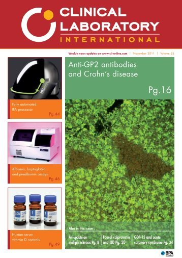 Anti-GP2 antibodies and Crohn's disease