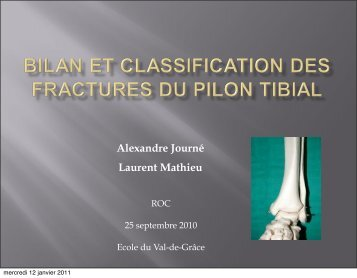 Bilan des fractures du pilon tibial - ClubOrtho.fr