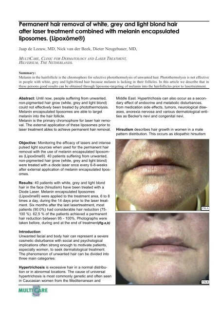 Permanent Hair Removal Of White Grey And Light Blond