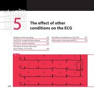 The effect of other conditions on the ECG - MedEd Connect