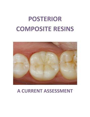 Posterior Composite Resins - SureFil SDR Flow from Dentsply Caulk