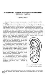 hipertrofia e ptose do lóbulo da orelha na lepra. correção plástica