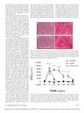 Dynamic alveolar mechanics and ventilator-induced lung injury - Page 2
