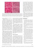 Dynamic alveolar mechanics and ventilator-induced lung injury - Page 6