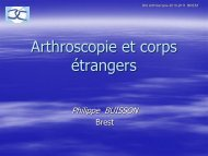 Arthroscopie et corps étrangers