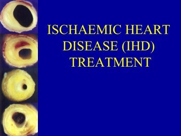 ISCHAEMIC HEART DISEASE (IHD) TREATMENT