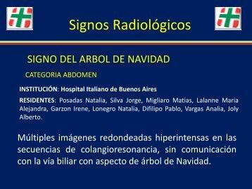 Signo Radiológico. Abdomen. - Congreso SORDIC