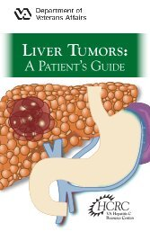 Liver Tumors: - Hepatitis C - US Department of Veterans Affairs