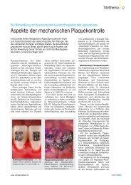 Beitrag mit Literaturhinweisen - Zahnärzteblatt Baden-Württemberg