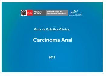 Carcinoma Anal - Instituto Nacional de Enfermedades Neoplásicas