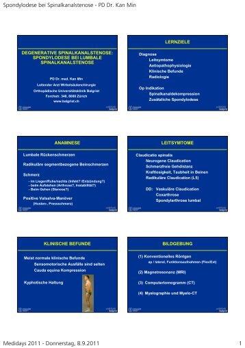 Spondylodese bei Spinalkanalstenose - PD Dr. Kan Min Medidays ...