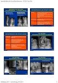 Spondylodese bei Spinalkanalstenose - PD Dr. Kan Min Medidays ... - Seite 5