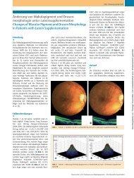 Änderung von Makulapigment und Drusenmorphologie unter ...