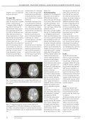 Magnetisk resonans og multipel sklerose I - Page 2