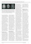 Magnetisk resonans og multipel sklerose I - Page 3