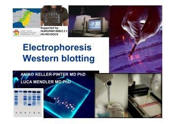 Electrophoresis Western blotting