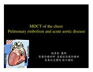 MDCT of the chest: Pulmonary embolism and acute aortic disease
