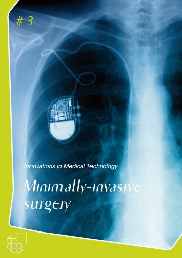 Minimally-invasive surgery - Eucomed