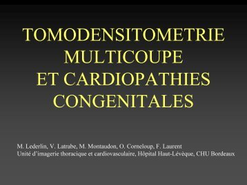 tomodensitometrie multicoupe et cardiopathies congenitales