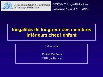 Inégalités de longueur des membres inférieurs - Généralités - SOFOP