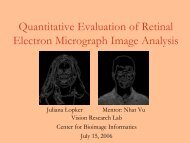 Quantitative Evaluation of Retinal Electron Micrograph Image Analysis