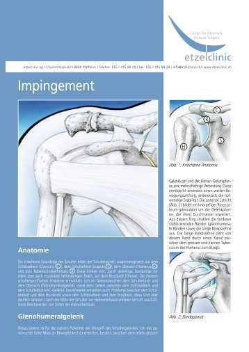Impingement - in der etzelclinic