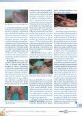 Leczenie oparzeń cz.2 - Spondylus - Page 5