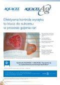 Leczenie oparzeń cz.2 - Spondylus - Page 6