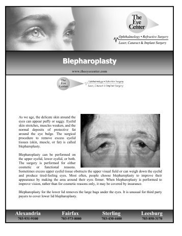 Blepharoplasty - The Eye Center