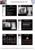 Vorlesung Kardiologie LMU 2005: DCM Dilatative Kardiomyopathie ... - Seite 4