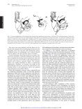 Surgical Strategy to Establish a Dual-Coronary System for the ... - Page 4
