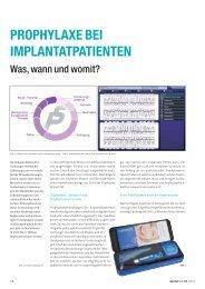 Prophylaxe bei Implantatpatienten - Was, wann und ... - zahniportal.de
