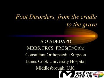 Foot Disorders, from the cradle to the grave - MOTEC LIFE-UK