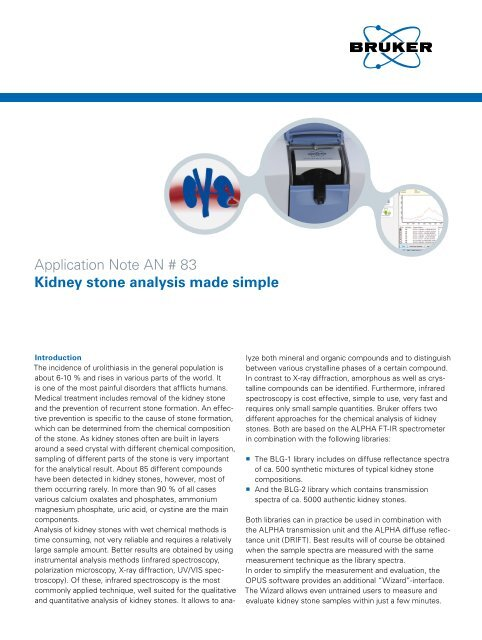 Application Note AN # 83 Kidney stone analysis made simple - Bruker