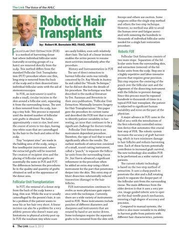 Robotic Hair Transplants - Bernstein Medical