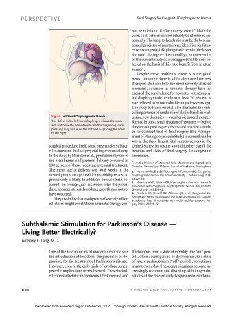 Subthalamic Stimulation for Parkinson's Disease — Living Better ...