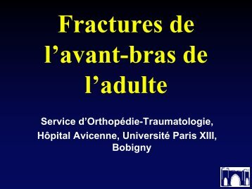 Fractures de l'avant-bras de l'adulte - ClubOrtho.fr