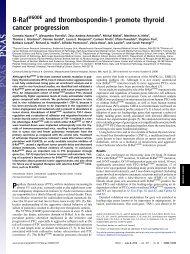 B-Raf and thrombospondin-1 promote thyroid cancer progression